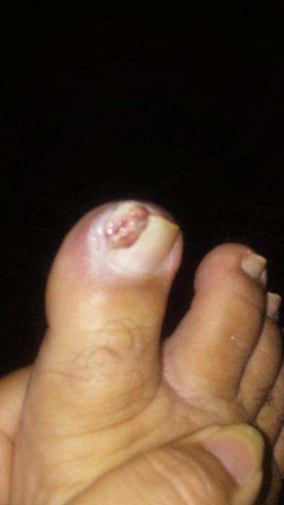 Granuloma piogênico