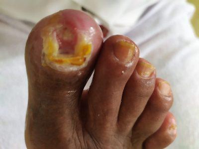 Úlcera (paciente diabético)
